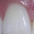 Jaká antibiotika nazánět zubu