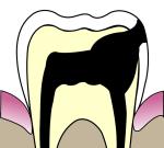 Jak léčit zánět podmrtvým zubem