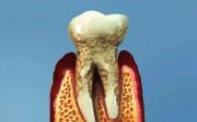 Parodontóza - skrytý strašák v ústech