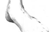 Lék naoteklé nohy