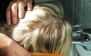 Paraziti ve vlasech