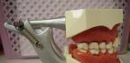 Problémy se zuby