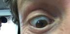 Zapadlé oči